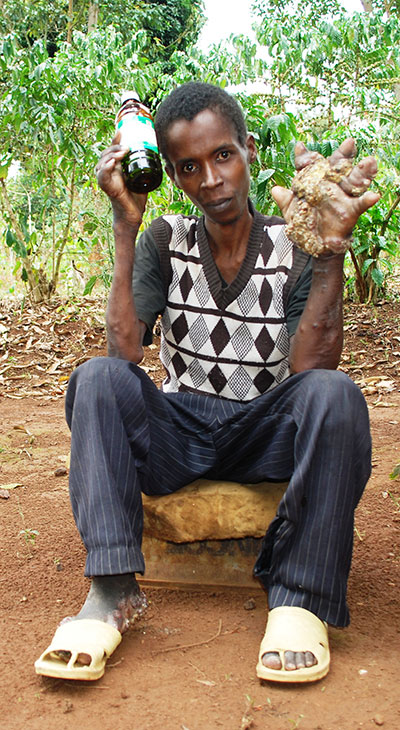 Luyinda's swelled hand with plaques and nodules which developed after lamps concetrating in his palm.PHOTO BY MOSES MUWULYA.